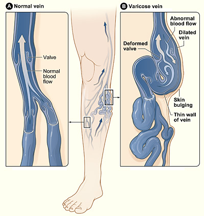 Varicose and normal veins